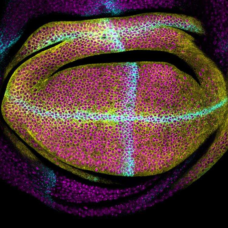 IRB , regula el tamaño y la forma de un órgano